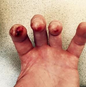 frank almond fingers