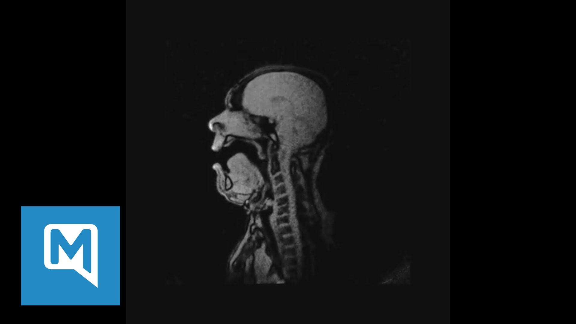 Inside your head: Watch MRI scan of baritone singing Wagner